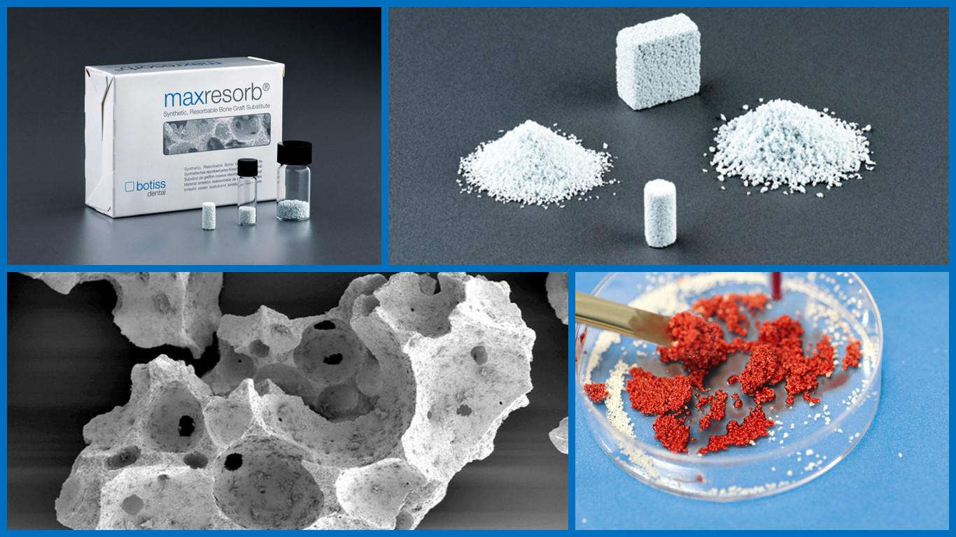 dual setting tricalcium phosphate composite cement Read dual‐setting calcium phosphate cement modified with ammonium polyacrylate, artificial organs on deepdyve, the largest online rental service for scholarly research with thousands of academic publications available at your fingertips.